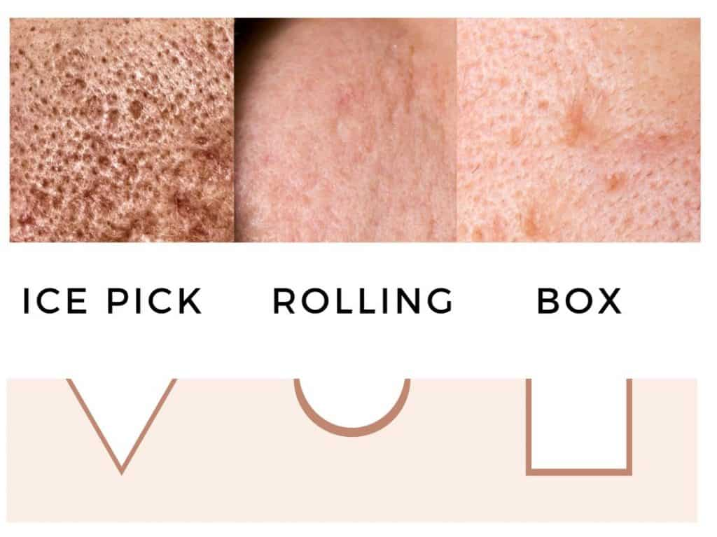 types of acne scar